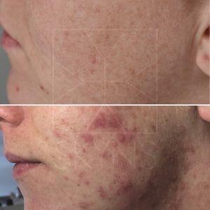 Acne voor en na Helmond pHformula