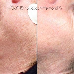 Voor en na huidveroudering